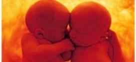 stellamatutina-gemelli-abbracciati